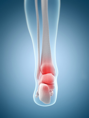 inflamed: inflamed ankle