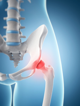 hips: inflamed hip joint Stock Photo