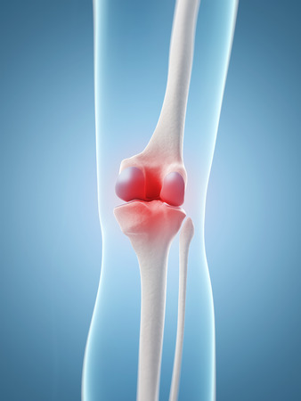 inflamed: inflamed knee joint Stock Photo