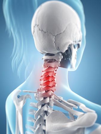 inflamed: inflamed neck