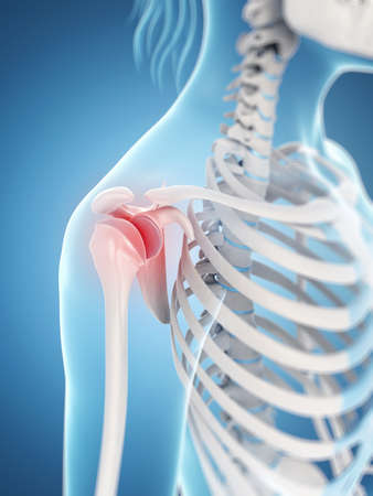 inflamed: inflamed shoulder joint Stock Photo
