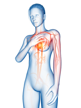 heart failure: medical 3d illustration - heart attack Stock Photo