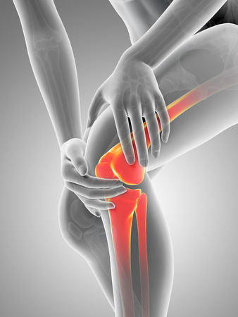 degenerative: medical 3d illustration - woman having pain in the knee Stock Photo
