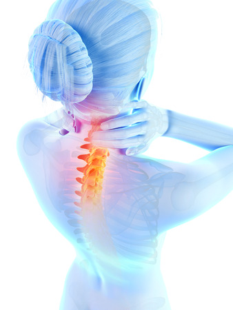 osteoporosis: medical 3d illustration - woman having a painful neck