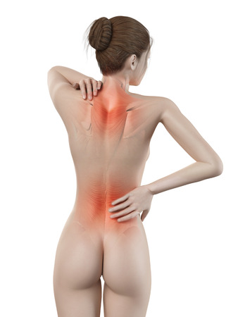 herniated: medical 3d illustration - female having backache