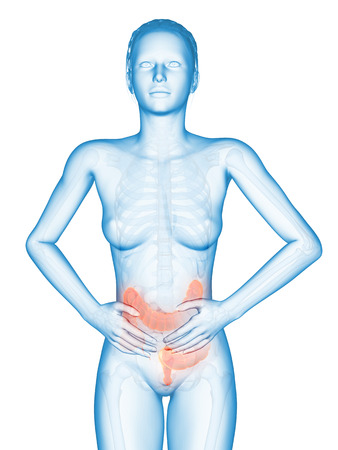 bowel disease: medical illustration - female having bellyache Stock Photo