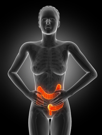 colorectal cancer: medical 3d illustration - woman having pain in the belly