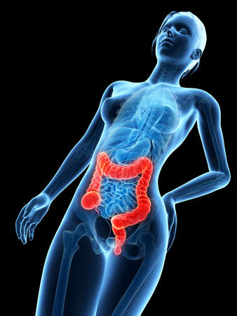 bowel cancer: medical 3d illustration - female anatomy - colon