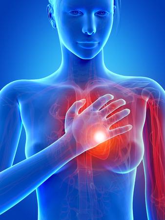medical 3d illustration - heart attack illustration