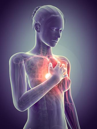 heart attack: medical illustration - woman having a heart attack