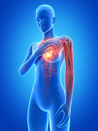 heart pain: medical illustration - woman having a heart attack