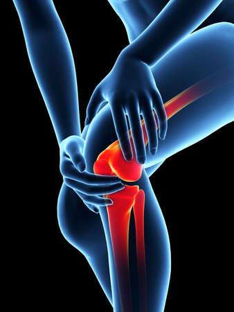 dolor de rodilla: ilustración médica - mujer que tiene dolor en la rodilla