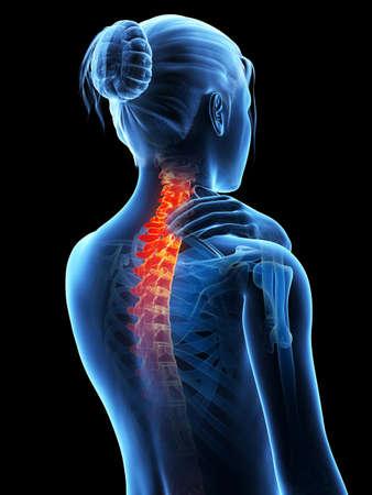columna vertebral: 3d ilustraci�n m�dica - la mujer que tiene un cuello doloroso Foto de archivo