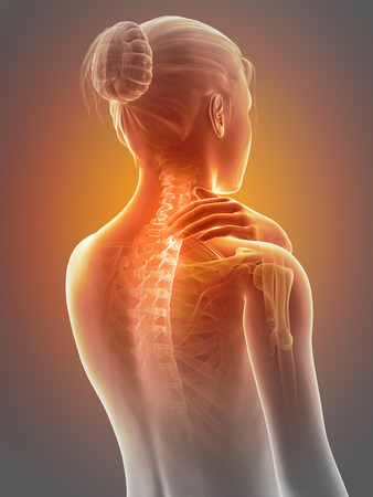 rheumatism: woman having a painful neck - visible spine