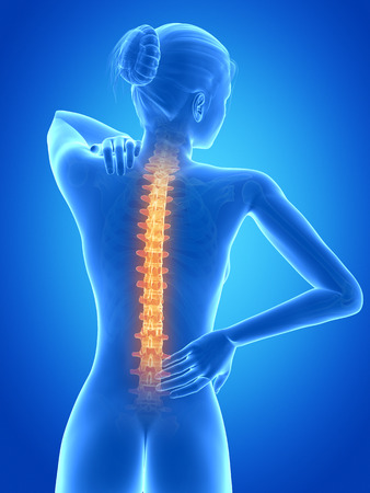 mujeres de espalda: 3d ilustraci�n m�dica - femenino tiene dolor de espalda Foto de archivo