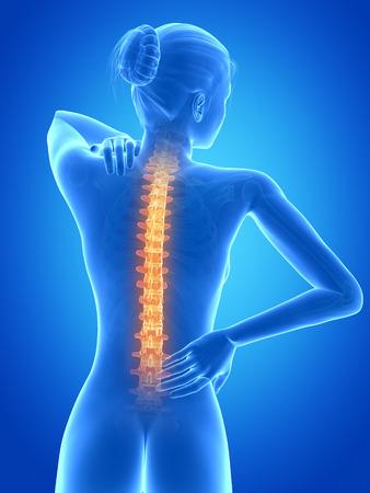 medical 3d illustration - female having backache