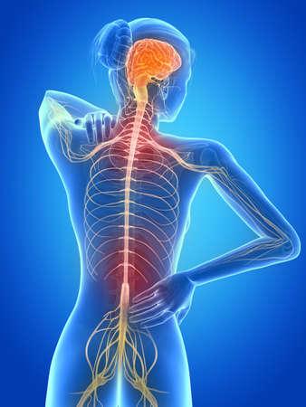 nervios: 3d ilustraci�n m�dica - femenino tiene dolor de espalda Foto de archivo
