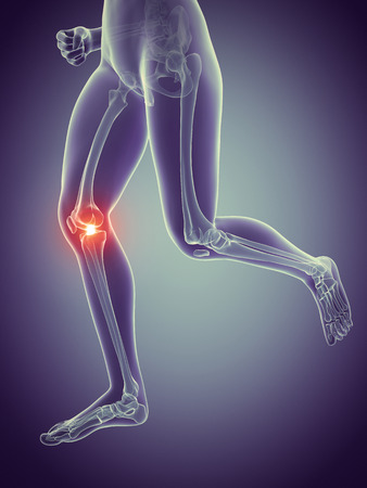 vintage anatomy: woman having pain in the knee