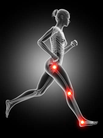 cramp: medical 3d illustration - jogger having pain in the joints