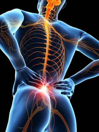 nervios: un hombre que tiene un dolor agudo en la espalda