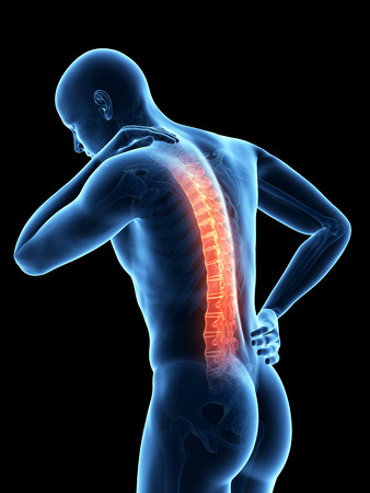 spine pain: a man having acute pain in the back