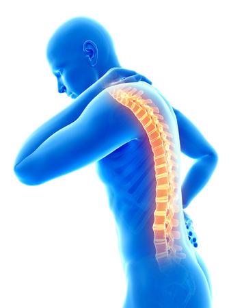 acute: a man having acute pain in the back