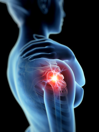a woman having acute pain in the shoulder joint Stock Photo