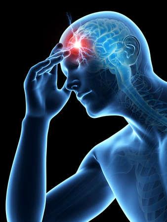 headaches: illustration of a man having a headache