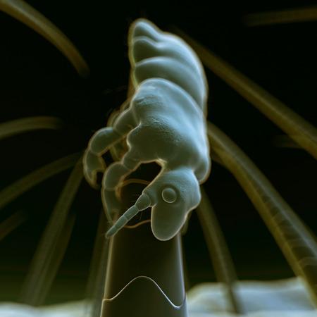 louse: medical 3d illustration - head louse