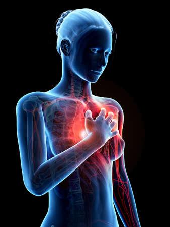 infarto: ilustraci�n m�dica - mujer que tiene un ataque al coraz�n