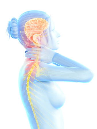 woman having a painful neck - visible nerves photo