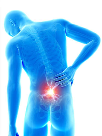 back ache: a man having acute pain in the back
