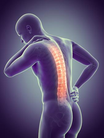 rheumatism: a man having acute pain in the back