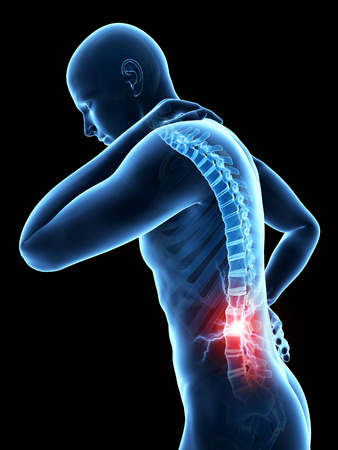 back pain: a man having acute pain in the back
