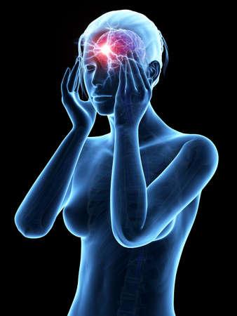 head pain: illustration of a woman having a megrim