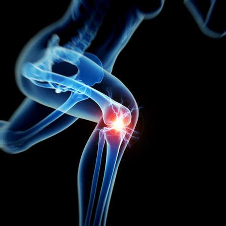 anatomia: mujer que tiene dolor agudo en la rodilla