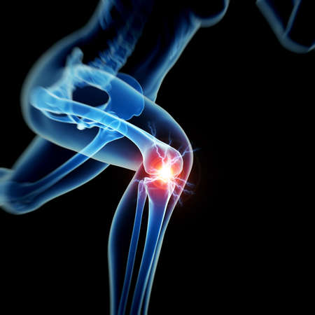 woman legs: woman having acute pain in the knee