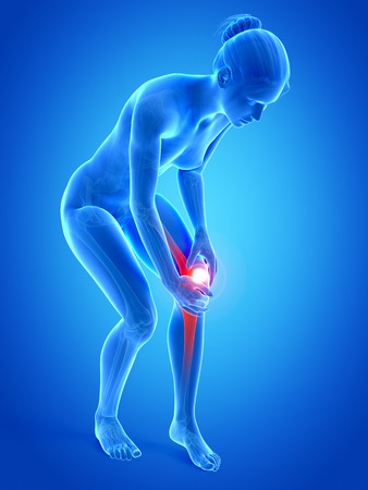 painful: medical illustration - woman having pain in the knee Stock Photo