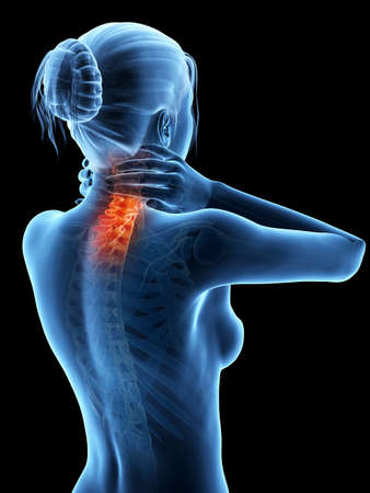 neck pain: woman having a painful neck - visible spine