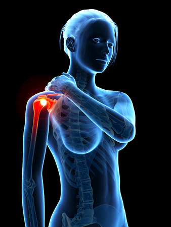 woman having pain in the shoulder photo