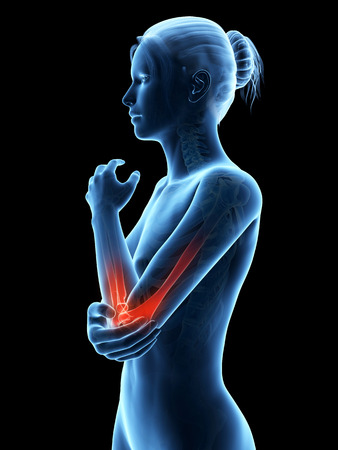 female elbow: woman having acute pain in the elbow joint