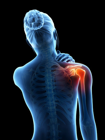 a woman having acute pain in the shoulder joint photo