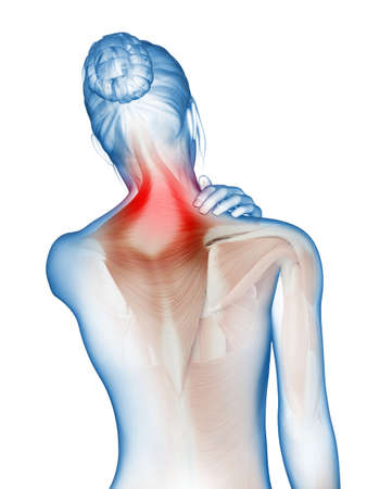 muscle woman: a woman having acute pain in the neck muscles Stock Photo