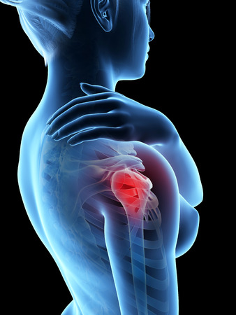 painful: a woman having acute pain in the shoulder joint Stock Photo