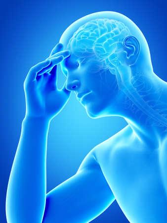 head pain: illustration of a man having a headache