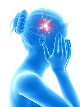 woman headache: illustration of a woman having a megrim