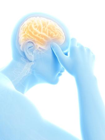sciatic nerve: illustration of a man having a headache