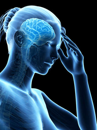 head pain: medical illustration of a woman having a headache Stock Photo
