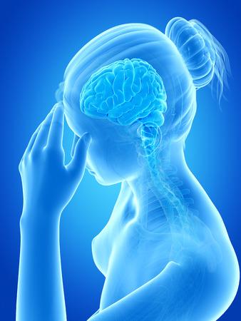 woman headache: medical illustration of a woman having a headache Stock Photo