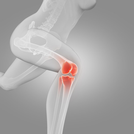 anatomy knee: illustration of a running woman - painful knee Stock Photo
